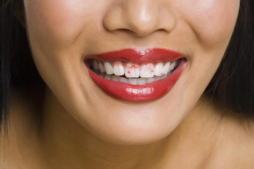 嘴巴结构名称图